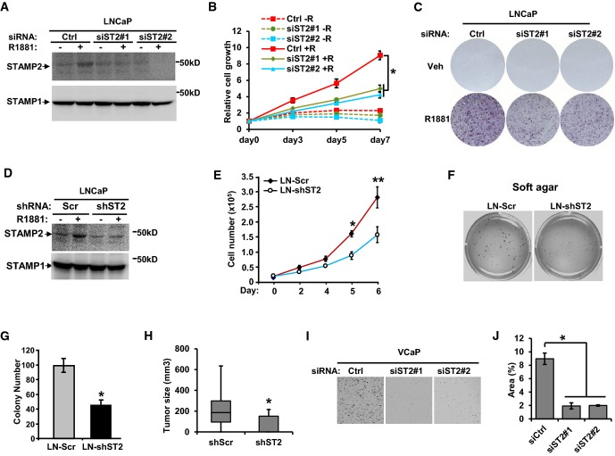 STAMP2 promotes PCa growth in vitro and in vivo A LNCaP cells were transfected with either control siRNA or two independent STAMP2 siRNAs, and membrane fractions of the cells were prepared followed by Western blotting analysis. STAMP1 is used as a loading control. B LNCaP cells were cultured in RPMI 1640 medium containing 10% CT-FBS and treated with or without 1 nM R1881 for 24 h before being transfected with the indicated siRNAs. The cells were then cultured for the indicated times, and cell growth was measured by Cell Counting Kit-8. n = 3, * P