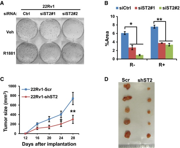 STAMP2 loss inhibits androgen-insensitive PCa cell growth in vitro and in vivo A 22Rv1 cells were cultured in RPMI 1640 medium containing 10% CT-FBS and treated with or without 1 nM R1881 for 24 h and were then transfected with the indicated siRNAs. The cells were then cultured for 10 days. The colonies formed were stained and photographed. B Quantification of data from (A). Student's t -test was performed to analyze the statistical significance, n = 3. * P = 0.0003; ** P