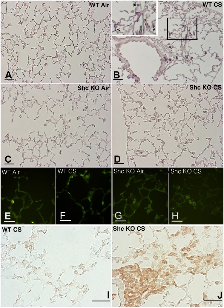 Lung slides from WT and p66 Shc−/− mice scored at 5 months for active caspase-3, TUNEL and p16INK4a. Immunohistochemical evaluation of active caspase-3 on lungs of air control (A) and smoking WT (B) mice at 5 months. Note in (B) a positive staining on alveolar macrophages and epithelial lung cells. The positivity on lung epithelial cells is more evident at higher magnification (see the arrowheads in the inset). Active caspase-3 staining on tissue slides from air-control (C) and smoking p66 Shc−/− mice (D). DNA strand-break extremities labeling (TUNEL) on lung tissues from air-control (E) and smoking (F) WT at 5 months. In (G) and (H) TUNEL labeling on air-control and smoking p66 Shc−/− mice, respectively. Immunohistochemical staining for the cyclin-dependent kinase inhibitor p16INK4a on lung slides from WT (I) and p66 Shc−/− (J) mice after 5 months of CS exposure. (A-J): Scale bars = 40 μm.