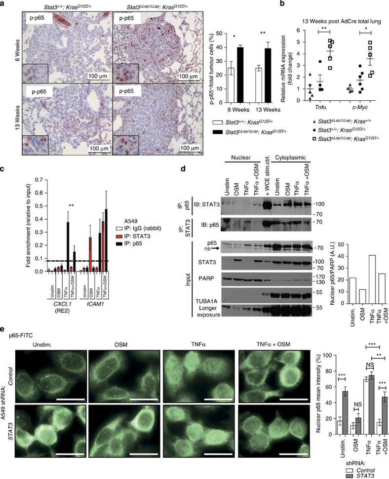 STAT3 retains p65 in the cytoplasm to reduce NF-κB activity. ( a ) NF-κB subunit p65 activation status (p-p65) was analysed by IHC. n ≥5 tumour sections per mouse per genotype and time point. Data were analysed by Student's t -test and are shown as mean±s.d. Scale bar, 100 μm. ( b ) qRT–PCR of NF-κB subunit p65 target genes ( Tnfα , c-Myc ) from total lungs at 13 weeks post AdCre. n ≥4 mice per genotype. Data were analysed by one-way ANOVA with Tukey's multiple comparison test and are displayed as mean±s.e.m. ( c ) Chromatin immunoprecipitation (ChIP) of NF-κB subunit p65 or STAT3 binding on human CXCL1 (responsive element 2, RE2). A549 cells were stimulated with indicated cytokines for 10 min. Binding of STAT3 and p65 on ICAM1 promoter served as positive control. ACTB element was chosen as negative binding region, indicated by the horizontal line. Values are presented as fold enrichment relative to chromatin input. Data of two independent experiments are shown. Data were analysed by one-way ANOVA with Tukey's multiple comparison test and shown as mean±s.e.m. ( d ) A549 cells were stimulated as in c . Immunoprecipitation (IP) of nuclear and cytoplasmic fractions was performed with antibodies against p65 or STAT3 and subjected to STAT3 and p65 immunoblot analysis, respectively. IP inputs were subjected to STAT3 and p65 (arrow indicates unspecific binding). PARP (nuclear) and TUBA1A (cytoplasmic) were used to determine purity of input. Densitometric quantification of bands was performed (AU, arbitrary units). ( e ) A549 cells transducted with scrambled shRNA or shRNA against STAT3 were stimulated as in c and stained with antibodies for NF-κB subunit p65 (FITC). n ≥6 regions of interest were quantified. White scale bar, 20 μm. Data were analysed by one-way ANOVA with Tukey's multiple comparison test and shown as mean± s.e.m. For all graphs: * P