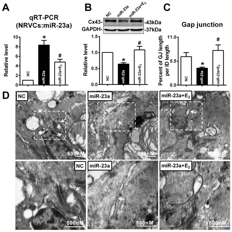 E 2 prevented Cx43 repression and gap junction defects induced by miR-23a overexpression in NRVCs. (A) qRT-PCR assay revealed that E 2 treatment inhibited the expression of miR-23a in NRVCs. (B) E 2 treatment prevented the reduction of Cx43 protein level induced by miR-23a in NRVCs. (C) The size of gap junction per intercalated discs. (D) The representative electron micrographs of NRVCs. Up: Full image of intercalated disk including fasciae adherentes junctions, desmosome and gap junctions. Gap junctions were pointed by arrows in dashed boxes. The gap junctions are pointed by arrows. Down: magnified images of gap junctions from dashed boxes of above images. The gap junctions are pointed by arrows. n=3. * P