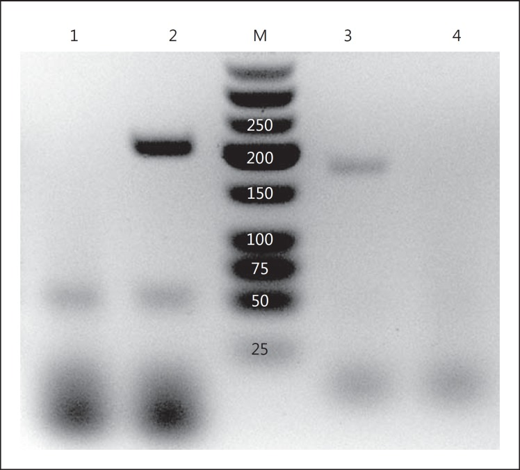 RT-PCR demonstrating gene expression of the TNFRs in podocytes. Total mRNA in the podocyte was DNase I-treated and then reverse-transcribed using oligo-dT. PCR was performed using exon-junction spanning primer pairs that are specific for the murine TNFR1 and TNFR2. On the agarose gel, PCR product bands are positive for both TNFR1 and TNFR2, with predicted amplicon sizes of 197 and 171 bp, respectively. As a negative control, the RT reaction was omitted, and the PCR bands no longer appear. 1 = TNFR1, DNase I-treated, not reverse-transcribed; 2 = TNFR1 primers; 3 = TNFR2 primers; 4 = TNFR2, DNase I-treated, not reverse-transcribed; M = marker in bp.