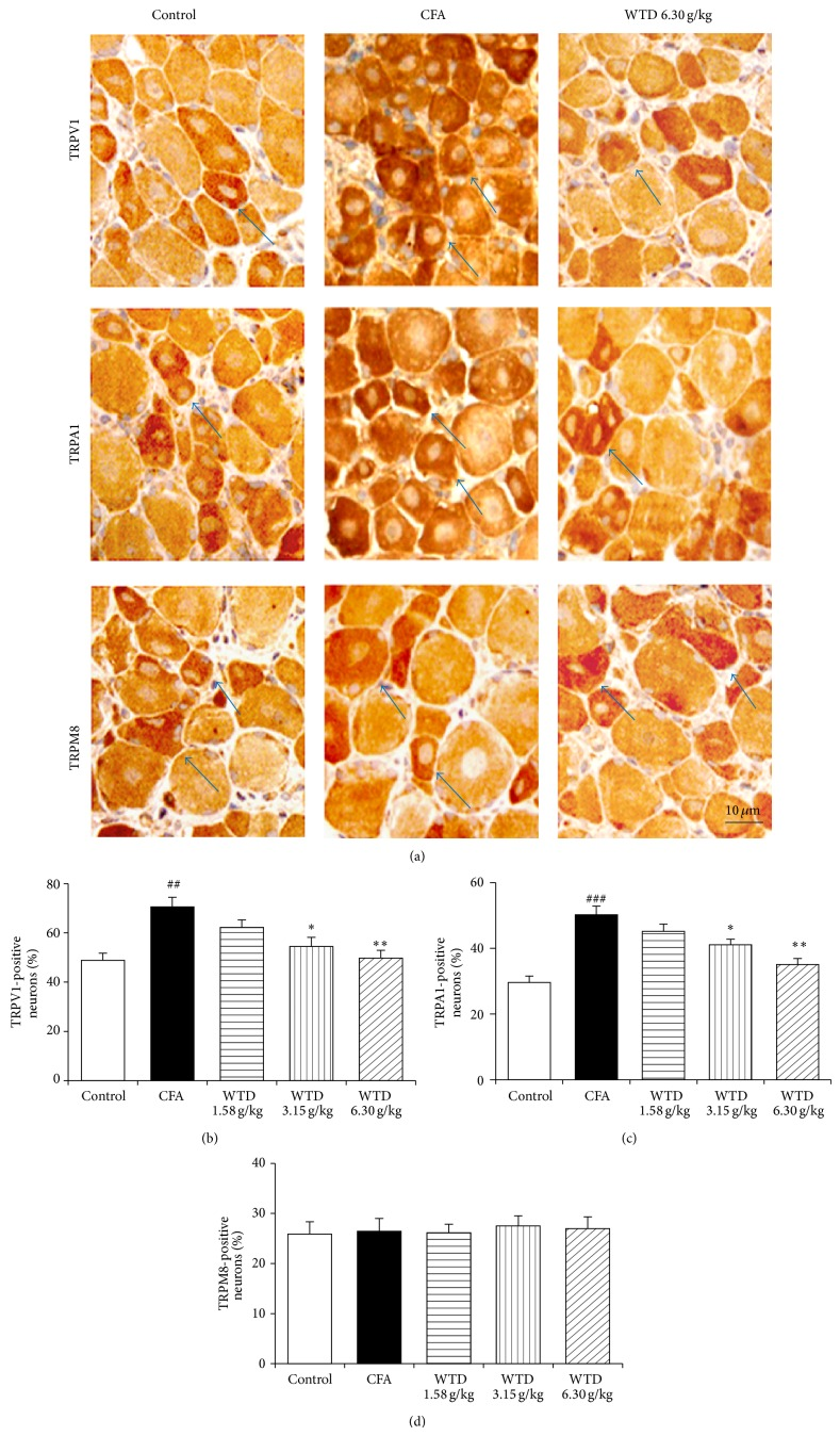 Effect of WTD on the expression of TRPV1, TRPA1, and TRPM8 in DRGs of inflammatory pain mice by immunohistochemical staining. Mice were orally administrated with WTD (1.58, 3.15, and 6.30 g/kg, resp.) or water daily for 15 days. (a) Localization of positive TRPV1, TRPA1, and TRPM8 neurons in DRGs of mice from control, CFA, and WTD groups, respectively. ((b) and (c)) The numbers of TRPV1- and TRPA1-positive neurons significantly increased in DRGs in CFA group, while WTD significantly reduced their expression. (c) No significant difference of the number of TRPM8-positive neurons was observed among the five groups. Data are represented as the mean ± SEM ( n = 8). ## P