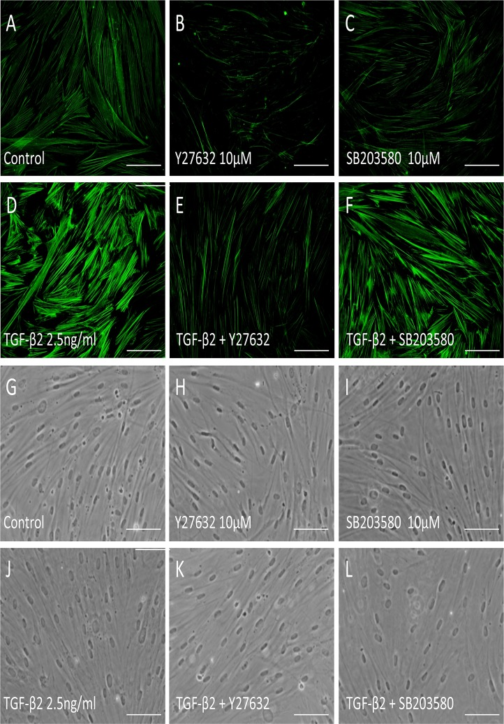Effects of TGF-β2, Y-27632 and SB203580 on actin stress fibers in HTM cells. HTM cells were pretreated with 10 μM Y-27632 (B, E) or 10 μM SB203580 (C, F) for 30 min, and then stimulated with 2.5 ng/ml TGF-β2 (D-F) for 24 h, stained with phalloidin-FITC, and observed by fluorescence microscopy. Scale bar: 50 μm.