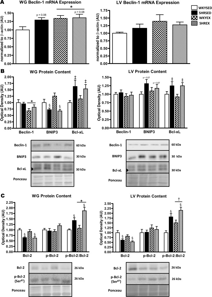 Expression of mRNA and proteins involved in autophagy regulation and induction in muscle of sedentary and exercise-trained normotensive and hypertensive rats. A : quantitative analysis of Beclin-1 mRNA in WG and LV. B : representative immunoblots and quantitative analysis of Beclin-1, BNIP3, and Bcl-xL protein in WG and LV. C : representative immunoblots and quantitative analysis of Bcl-2 and p-Bcl-2 (Ser 87 ) protein in WG and LV (calculated p-Bcl-2:Bcl-2 ratio is also shown). Portions of Ponceau stained membranes are also shown to verify equal loading and quality of transfer. Values are means ± SEM ( n = 9–12). ‡ p