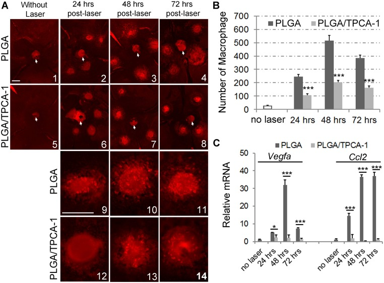 Effects of TPCA-1-loaded PLGA microparticles on macrophage recruitment to the laser lesions. Retrobulbar injection of 100-μL microparticle suspensions containing either PLGA (10 mg) alone or PLGA loaded with TPCA-1 (10 mg/0.8 mg) was performed on the mice at age of 8-week-old, and followed immediately by laser burn of Bruch's membrane. After 24, 48, or 72 hours, mice were euthanized, and the eyes were dissected and fixed in 4% PFA. The posterior eye cups with attached RPE layer were washed with 1xPBS, stained with <t>F4/80</t> antibody, and flat-mounted for fluorescent imaging. (A) The representative flat-mount images show that F4/80-stained macrophages appear to have migrated to CNV lesions at 24, 48, or 72 hrs post-laser. Images 1–8 of the laser lesion area on the whole-mounted eye cups were taken at low magnification, and the images 9–14 were taken at higher-magnification. The white arrows indicate optic disks. The scale bar in image A1 represents the magnification of images A1–8, and the scale bar in A9 represents the magnification of A9–14. Scale bar, 250 μm. (B) The number of anti-F4/80-stained macrophages in the choroid/RPE surface were counted and expressed as mean±SD, n = 4 eyes for each condition. Statistics were performed using a two-tailed Student's t -test to compare the values between the PLGA and PLGA/TPCA-1-treated eyes. *** p
