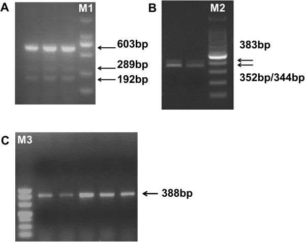 PCR analysis of the GPIHBP1 coding region in samples of mammary gland using three pairs of primers. (A)  With primer 1, transcript X2 (603 bp), transcript X3 (289 bp) and transcript X4 (192 bp) were observed as expected (according to the mRNA sequence of the bovine  GPIHBP1  gene in NCBI database). M1: DL2000, 2,000 bp, 1,000 bp, 750 bp, 500 bp, 250 bp, 100 bp.  (B)  With primer 2, in addition to the expected PCR band (352 bp and 344 bp), a band of 383 bp was also observed in all samples. M2: 100 bp DNA Ladder from 1,500–100 bp.  (C)  With primer 3, only the expected band (388 bp) was observed in all samples. M3: DL500, 500 bp, 400 bp, 300 bp, 200 bp, 150 bp, 100 bp and 50 bp.