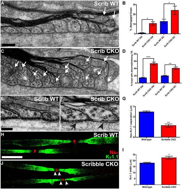 Conditional elimination of Scribble expression in oligodendrocytes disrupts paranodal axo-glial junctions and axonal domain organisation at the node of Ranvier. A–F; In P40 Scribble cKO mice (C), paranodal axo-glial junctions in spinal cord or optic nerve (not shown) displayed an increased proportion of loops that had disengaged from the axonal surface (white arrows) relative to those in the CNS of wild-type littermates (A). This is quantified in B; WT ON: 0.8% ± 0.4%, cKO ON: 10.6% ± 1.8%, WT SC: 12.7% ± 2.4%, cKO SC: 24.1% ± 4.3%. Of the paranodal loops that faced the axolemma, a significantly increased proportion found in Scribble cKO mice were either linked to the axonal membrane by disordered electron density (F, arrow) instead of the ordered transverse bands seen in WT animals (E), or lacked transverse bands entirely (F, arrowhead). This is quantified in D; WT ON: 14.4% ± 1.7%, cKO ON: 53.4% ± 3.9%, WT SC: 19.9% ± 1.6%, cKO SC: 40.7% ± 3.5%. Results were presented as mean ± SEM. Student's t test was used. At least 20 nodes of Ranvier were analysed from each of three animals per genotype. G–I; Teased fibre preparations from P40 ventral spinal cord were used to assess myelin domain organisation at nodes of Ranvier in Scribble cKO mice and wild-type littermates. In Scribble cKO nerves, voltage-gated potassium channels normally localised to the juxtaparanode (Kv1.1, green) invade the paranode (J, arrowheads), encroaching on voltage-gated sodium channels at the node of Ranvier (Nav, red), while normal spacing is maintained in wild-type nerves (H), resulting in significantly reduced distances between sodium and potassium channel labelled regions (G; WT: 2.47 ± 0.09 μm, cKO: 1.13 ± 0.15 μm). This is due at least in part to widening of the Kv1.1-immunolabelled domain (I; WT: 18.0 ± 0.6 μm, cKO: 22.4 ± 1.3 μm). Results were presented as mean ± SEM. Student's t test was used. At least 30 nodes of Ranvier were analysed from each of four animals per genotype. * p