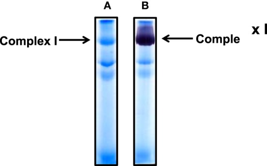 Non-gradient blue native gel electrophoresis of cardiac mitochondria isolated from rat heart. (A) Gel image after electrophoresis without further CBB staining; (B) complex I activity staining by <t>NADH</t> and <t>NBT.</t> An 8% resolving gel was performed.