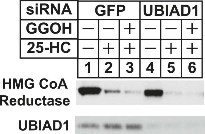 RNA interference-mediated knockdown of UBAD1 alleviates requirement for geranylgeraniol in sterol-accelerated reductase degradation. SV-589 cells were set up for experiments on day 0, transfected with the indicated siRNA duplexes on day 3, and depleted of sterols as described in the legend to Figure 3 . Notably, the siRNA duplex targeting UBIAD1 (5′-UCUUGGAGCCGCAGGAUGUUU-3′, Dharmacon/ThermoScientfic) was distinct from that used in Figures 3, 6 . The sterol-depleted cells were then treated with medium A containing 10% NC-LPPS, 10 µM compactin, and 50 µM mevalonate in the absence or presence of 1 µg/ml 25-HC and 20 µM geranylgeraniol (GGOH). Following incubation for 4 hr at 37°C, cells were harvested for subcellular fractionation. Aliquots of resulting membrane fractions (20 µg protein/lane) were subjected to SDS-PAGE and immunoblot analysis was carried out with IgG-A9 (against reductase) and IgG-H8 (against UBIAD1). DOI: http://dx.doi.org/10.7554/eLife.05560.013