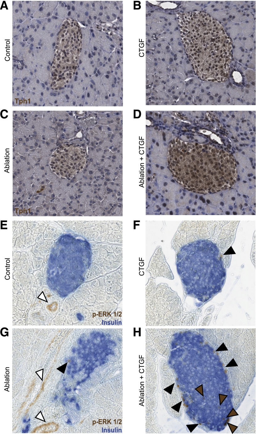 Alterations in Tph1 expression and ERK1/2 signaling in response to CTGF and/or ablation. A – H : Representative images of islets at 2 days of CTGF. A and E : Control. B and F : CTGF. C and G : Ablation. D and H : Ablation+CTGF. Tph1: Primary antibodies were visualized via a DAB Peroxidase Substrate Kit (Vector Laboratories) and counterstained with hematoxylin. p-ERK1/2: Primary antibodies for p-ERK1/2 and insulin were visualized via a DAB Peroxidase Substrate Kit (Vector Laboratories) and an alkaline phosphatase Vector Blue Substrate Kit (Vector Laboratories), respectively. Brown and black arrowheads demark β-cells or other islet cells with activated ERK1/2 signaling, respectively. White arrowheads demark endothelial cells with activated ERK1/2 signaling. n = 4 for Tph1 and n = 3 for p-ERK1/2.