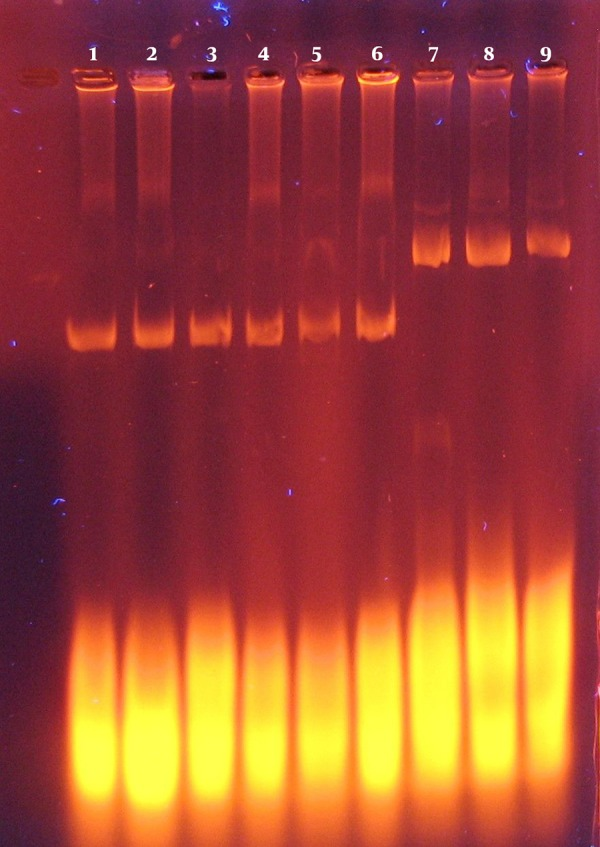Electrophoresis of Extracted Plasmids From E. coli DH5α Using Alkaline Lysis Lanes 1 to 6, extracted pBAD/gIIIA from E. coli DH5α ; lanes 7 to 9, extracted Pet15B from E. coliDH5α .