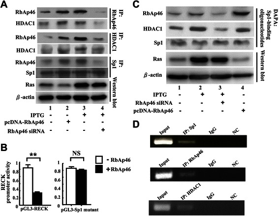 Ras overexpression increases association of RbAp46 with HDAC1 at the <t>SP1</t> site of RECK promoter in 7–4 cells. (A) The 7–4 cells were transiently transfected with plasmid DNA pcDNA-RbAp46 (0.2 μg) or RbAp46-specific siRNA (55.6 nM) in the presence of IPTG for 48 hr. After treatment, co-immunoprecipitation was conducted using anti-RbAp46, anti-HDAC1 antibodies, or anti-Sp1 antibody. (B) The cells were co-transfected with 0.2 μg of plasmid DNA of pGL3-RECK and pGL3-Sp1 mutant in the presence or absence of pcDNA-RbAp46 plasmid. RECK promoter activity was measured at 48 hr post-transfection. **: statistical significance at p