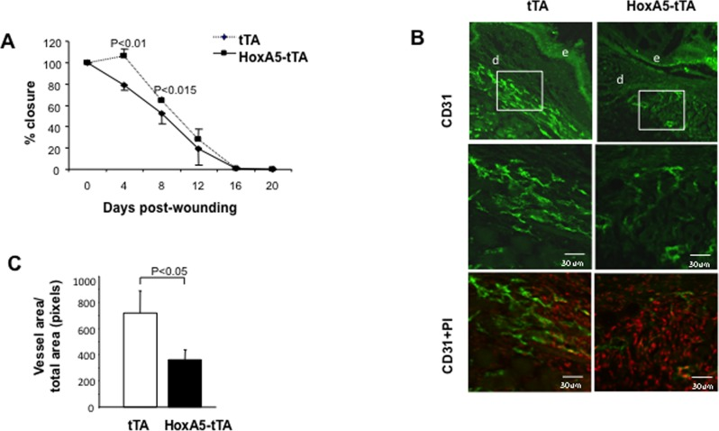 Sustained HoxA5 expression inhibits wound healing. ( A ) Wound closure in tTA (diamonds) and HoxA5-tTA (circles) mice. Wounds were measured every 4 days. HoxA5-tTA mice showed a significant (P