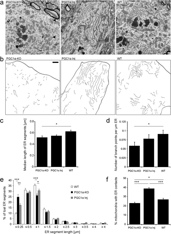 Expression of PGC-1α rescues ER morphology in PGC1α-KO mice, and increases the number of mitochondrial contacts with ER. (a) Electron micrographs of neuronal soma in the SNpc of PGC1α-KO, PGC1α Inj and WT mice. Black arrowheads indicate the presence of giant mitochondria with disorganized cristae. (b) ER cisternae are colored in light gray. The cell membrane at the border of the neuronal cytosol is outlined. Note that PGC1α-KO mice display a disorganized and fragmented ER. In WT and PGC1α Inj mice, normal ER stacks are observed. Scale bar: 1 μm. (c,d) Quantification of the median length of ER profiles and number of branch points per μm of ER. (e) Relative length distribution of the ER segments in individual neurons from WT, PGC1α-KO and PGC1α Inj mice. Note the overall fragmentation of the ER in neurons from PGC1α-KO mice. Statistical analysis for c-d: one-way ANOVA with Newman-Keuls post-hoc test; WT: n = 51 neurons; PGC1α-KO: n = 51 neurons; PGC1α Inj: n = 60 neurons (f) Percentage of mitochondria having membrane contacts with ER. Note that PGC-1α significant increases the proportion of mitochondria with ER contacts. Statistical analysis: one-way ANOVA with Newman-Keuls post-hoc test; WT: n = 79 neurons; PGC1α-KO: n = 89 neurons; PGC1α Inj: n = 113 neurons; *p
