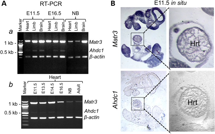 Analysis of mouse <t>Matr3</t> and Ahdc1 transcripts expression in developing heart. ( A ) RT–PCR analyses of Matr3 and Ahdc1 . ( a ) Semi-quantitative RT–PCR analyses show strong Matr 3 expression in developing mouse heart, limb and brain at E11.5, 16.5 stages, ( b ) with down-regulation at the newborn (NB) and adult stages. In contrast, Ahdc1 expression is only weakly detected in limb and brain at E11.5 and 16.5. ( B ) Section in situ hybridizations at E11.5 for mouse Matr3 and Ahdc1. Matr3 is expressed in CNS, pharyngeal arches, limb buds and in the developing heart (enlarged section), whereas Ahdc1 expression was undetectable in heart (enlarged section). Sense controls (not shown) showed no expression.