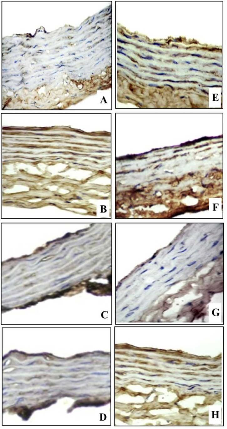 TNF-α immunohistochemical staining (IHCX400) of aortic sections in different experimental groups. (A) Control non-diabetic group with focal faint TNF-a immunostaining (brownish color), (B) Non-diabetic/CRS vehicle-treated group shows moderate diffuse immunostaining, (C) Non-diabetic/CRS fluoxetine-treated and (D) Non-diabetic/CRS imipramine-treated groups show focal mild staining, (E) Control diabetic group (F) Diabetic/CRS vehicle-treated gr oup shows strong diffuse immunostaining, (G) Diabetic/CRS fluoxetine-treated group shows focal mild staining and (H) Diabetic/CRS imipramine-treated group show moderate diffuse immunostaining.