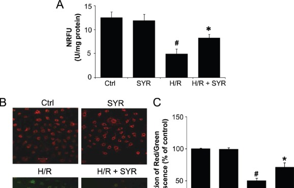 CD147 promotes Src activation through FAK (A) Src activity in CD147-pcDNA3.1-transfected 7721 cells was blocked with Src I-1. Left panel: representative image. Right panel: quantification. (B) Src activity in 7721 or CD147-pcDNA3.1-transfected 7721 cells was blocked with FAK inhibitor (PF573,228). Left panel: representative image. Right panel: quantification. (C) Src activity in CD147-pcDNA3.1-transfected 7721 cells was blocked with FAK inhibitor-14 (Y-15). Left panel: representative image. (D) Src activity in CD147-pcDNA3.1-transfected 7721 cells was blocked with FAK siRNA (si-FAK). Left panel: representative image. Right panel: quantification. The bars represent each sample performed in triplicate, and the error bars indicate ± SD. ** P
