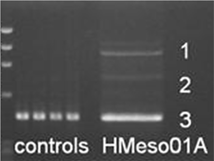 Detection of aberrant splicing products in HMeso01A harboring the BAP1 c . 2054 A > T (p.E685V) mutation. <t>PCR</t> fragments generated from amplification of BAP1 <t>exons</t> 14–17 on cDNAs from HMeso01A and 4 controls were separated by agarose gel electrophoresis. Marker: DNA marker PhiX 174-HaeIII digest ladder.