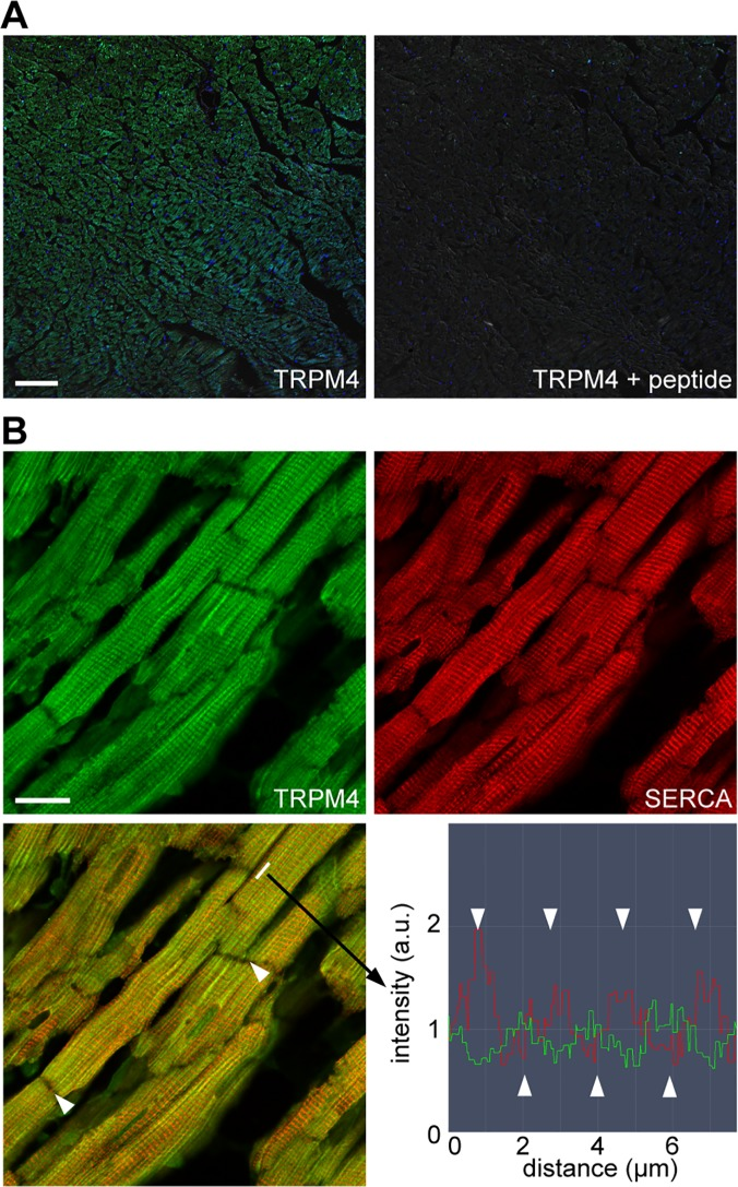 Immunofluorescence imaging of <t>TRPM4</t> in the healthy rat heart. (A) Adult rat heart sections were labeled with anti-TRPM4 antibodies (green) and stained with Hoechst 33342 for the nuclei (blue). The green and blue fluorescence images were overlaid with the DIC image. Staining specificity was confirmed by the lack of signal when anti-TRPM4 antibodies were preincubated with the antigenic blocking peptide (ab65597). Scale bar: 100 μm. (B) Double immunofluorescence showing TRPM4 (green) and SERCA2 (red) expression in ventricular cardiomyocytes. Scale bar: 20 μm. The overlaid image (left bottom) reveals alternating positions for the TRPM4 and SERCA2 proteins on the longitudinal axis of cardiomyocytes. Arrowheads indicate the intercalated disc. Fluorescence intensity profile (right bottom) confirmed the alternating expression of TRPM4 and SERCA2.