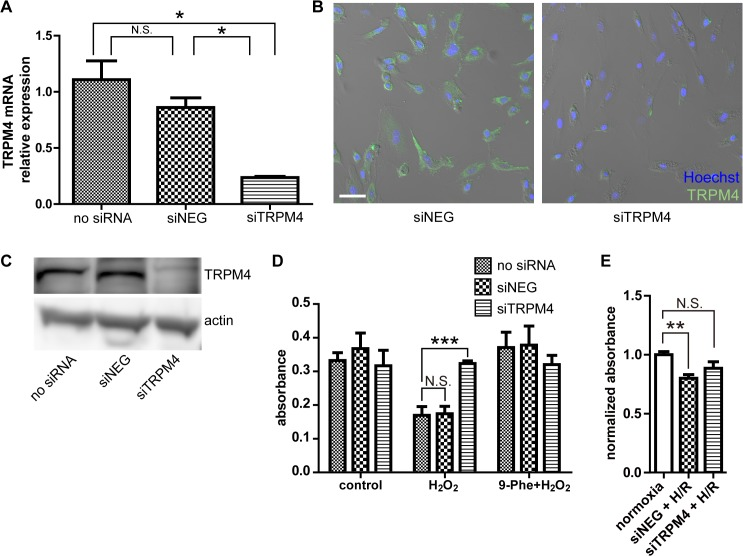 Knockdown of TRPM4 prevents cell death caused by H 2 O 2 challenge in H9c2 cardiomyocytes. (A) Quantitative RT-PCR confirming the gene silencing of TRPM4. siNEG, cells transfected with control siRNA; siTRPM4, cells transfected with TRPM4-targeting siRNA. n = 5 for each group. (B) Confirmation of suppressed TRPM4 protein expression by immunocytochemistry 48 h after siRNA transfection. Green, anti-TRPM4, Blue, Hoechst 33342 dye (nuclei). The fluorescent images were overlaid with DIC images of the cultures. (C) Confirmation of suppressed TRPM4 protein expression by Western blot 24 h after siRNA transfection. (D) Impact of gene silencing on the loss of viability induced by 200 μM H 2 O 2 . Cell viability was measured by the MTT assay. n = 5 for each group. (E) Impact of TRPM4 knockdown on the hypoxia/reoxygenation (H/R) challenge. Cell viability was measured by the MTT assay. n = 6 for each group. Statistical analysis was performed using Dunnett's test as post hoc. *: p