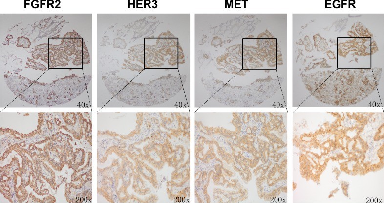 FGFR2 positive tumors showed copositivity of enriched drug resistance related RTKs Representative immunohistochemical analysis of one patient with FGFR2 positive GC is shown. Copositivity of HER3, MET and EGFR were accompanied by FGFR2 positivity.