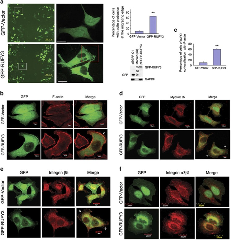 Overexpression of RUFY3 induces the formation of F-actin-enriched protrusion at the cell periphery. ( a ) GFP-RUFY3 localizes in F-actin-enriched invadopodia at the cell periphery of SGC-7901 cells. (Left panel) The living cell image acquisition was performed at 25 °C with SGC-7901 cells transfected with GFP-RUFY3 and undergoing a scratch wound assay, and GFP vector was used as a control. A representative image was shown. The white boxed areas in the left images ( × 100; scale bars, 200 μ m) are magnified in the right images ( × 600; scale bars, 24 μ m). The red boxed area in the right images shows that the cells expressing GFP-RUFY3 can localize at the periphery in a scratch area. (Right panel) Histogram showed the relative percentage of cells with actin protrusion at the migrating edge. Data are the average of at least three independent experiments with similar results, in which ~100 cells were counted (** P