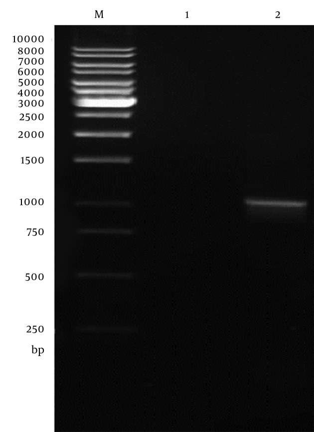 Agarose Gel Electrophoresis Analysis the Expression of SAG1 in CHO Cells by RT-PCR Assay Line M, 1 kb DNA ladder; Line 1, Transfected CHO cells with empty pVAX1 plasmid; Line 2, Transfected CHO cells with pVAX-SAG1.