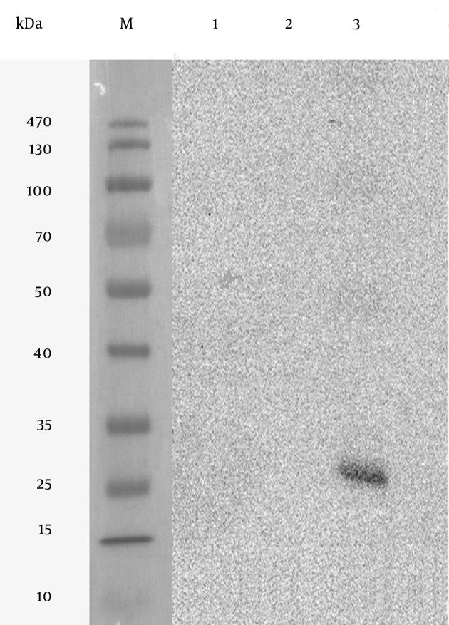 Expression of SAG1 Protein in Transfected CHO Cell Lysate by Western Blot Lane M, Prestained Protein Ladder; Lane 1, untransfected CHO cells; Lane 2, transfected CHO cells with empty pVAX1 plasmid; Lane 3, transfected CHO cells with pVAX1-SAG1 expression plasmid; a protein band about 30 kDa corresponding to SAG1 protein is detected.