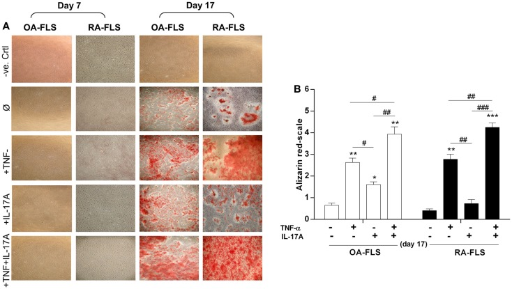 Effects of IL-17A and/or TNF-α on extracellular matrix of synoviocytes . FLS were cultured at a density 5 × 10 3 cell/cm 2 . (A) In the absence (column 1, negative control as basic DMEM medium without any addition) or presence (column 2) of osteogenic factors. TNF-α 1 ng/ml (column 3) or IL-17A 50 ng/ml (column 4), or both (column 5) were added or not to cultures. After 7, 14, and 17 days, cells were stained with alizarin red and (B) calcium deposits were quantified and analyzed for each condition using the Wilcoxon test * p