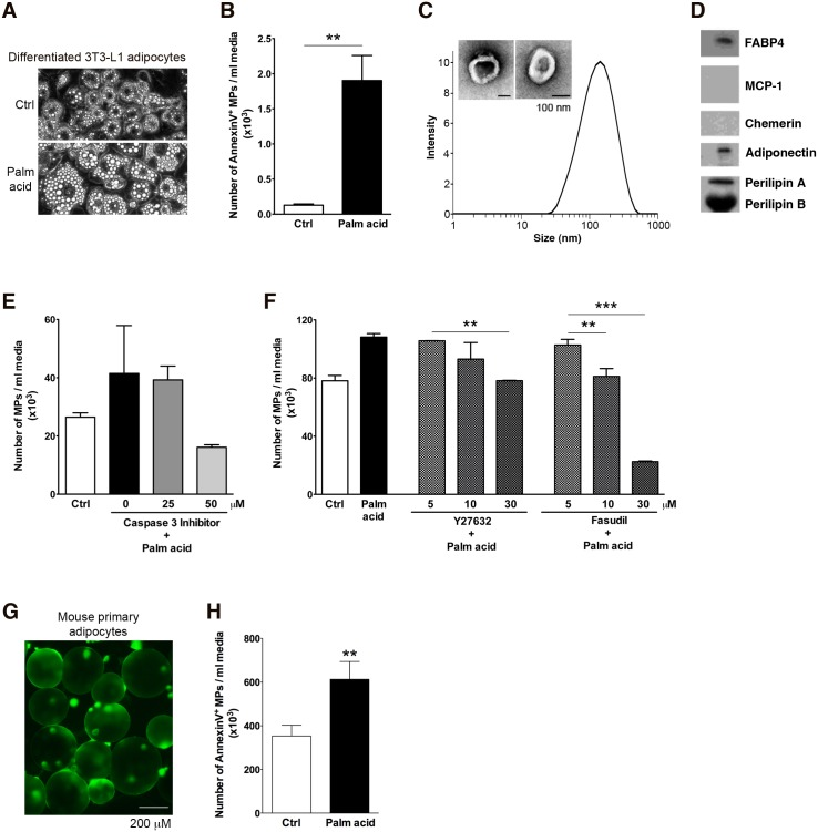 MPs are released by stressed adipocytes in a caspase 3 and Rho-associated kinase dependent manner. (A-D) Characterization of adipocyte-derived MPs. (A) Morphology of the differentiated 3T3-L1 adipocytes treated with control, 0.5 mM palmitic acid. (B) The number of Annexin V positive MPs was quantitated by flow cytometry. (C) Dynamic light scattering analysis and Transmission Electron Microscopy of isolated MPs. Isolated MPs were measured by Zetasizer and analyzed using intensity. (D) Western Blot analysis of MPs released by adipocytes. Isolated MPs were fractionated by SDS-PAGE and probed with FABP4, MCP-1, Chemerin, Adiponectin and Perilipin antibody. (E-F) Differentiated adipocytes were incubated with or without palmitic acid in the absence or presence of a selective caspase-3 inhibitor (E), or a range of doses of two different Rho associated kinase inhibitors (Y27632 and fasudil) (F) for up to 12 hrs. Supernatants were then collected and MPs isolated by ultracentrifugation as detailed in methods section. (G) Morphology of isolated mouse primary adipocytes. (H) Number of annexin V positive mouse primary adipocyte-derived MPs assessed by flow cytometry. Values represent mean ± S.D. * P