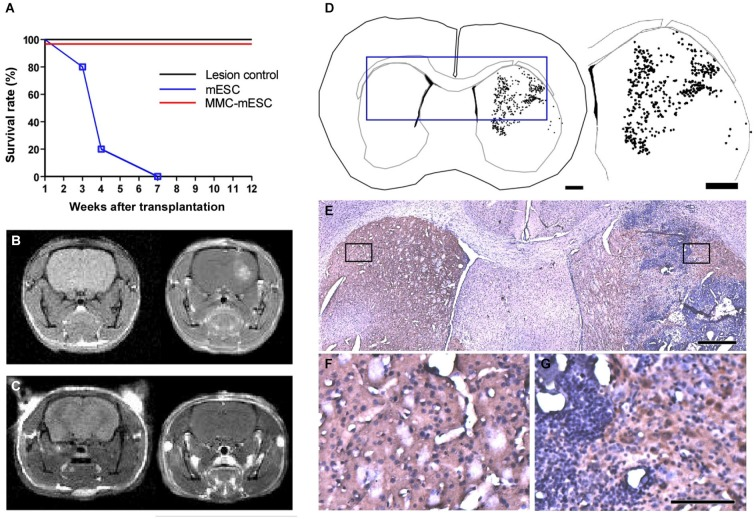 Transplantation of fully undifferentiated mESCs previously treated or non-treated with MMC into 6-OHDA-lesioned mice brains. (A) Survival curve of control and transplanted 6-OHDA-lesioned mice: 4 weeks after 6-OHDA injection in the striatum, mice were injected at the same stereotaxic coordinates with culture medium (lesion-control, n = 8), untreated mESCs (mESC, n = 8), or mitomycin-treated mESCs (MMC- mESC, n = 12). (B,C) In vivo brain MRI, coronal plane, T1-weighted sequence, prior to (left-hand panel) and after (right-hand panels) gadolinium injection evidencing striatal tumor 4 weeks after transplantation of untreated mESCs (B) and showing no signs of tumor formation in an animal transplanted with 500,000 mitomycin-treated mESCs for as long as 60 weeks (C). (D) Computer-microscope reconstruction of a coronal section through the forebrain of a 6-OHDA-lesioned mouse 4 weeks after transplantation with untreated mESCs into the striatum (dots indicate cell bodies positive for TH-immunostaining). (E) Histology of the boxed area in the computer-generated plot in (D) ; boxed areas in E are shown at higher magnification (F,G). (F) non-lesioned, non-transplanted side showing control level of TH staining (brown) in the striatum. (G) 6-OHDA-lesioned and mESC-grafted hemisphere, illustrating TH-positive cell bodies within the host striatum in close proximity to the tumor edges. Scale bar: 1000 µm and 1800 µm, respectively, for (D) , 500 µm for (E) , 100 µm for (F,G) .