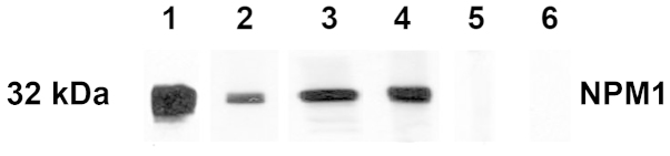 Western blot analysis with representative sera in ELISA. Lane 1, the <t>polyclonal</t> <t>anti-NPM1</t> antibody was used as positive control. Lanes 2–4, three representative HCC sera which were positive in ELISA also had strong reactivity with NPM1 recombinant protein in western blot analysis. Lanes 5 and 6, two randomly selected NHS had negative reactivity to NPM1 recombinant protein. NPM1, nucleophosmin; HCC, hepatocellular carcinoma; NHS, normal human sera.