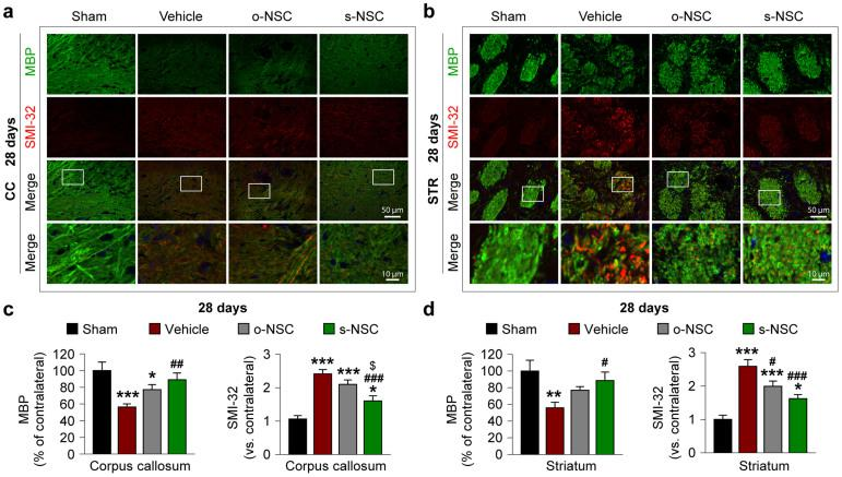 Transplantation of s-NSCs improves white matter integrity 28 days after ischemia. Mice received transplantation of o-NSCs or s-NSCs 2 hours after MCAO. Brain sections were dual-stained for myelin basic protein (MBP) and non-phosphorylated neurofilament H (SMI-32) on day 28 after ischemia. (a–b) Representative immunofluorescent images of MBP and SMI-32 staining in the corpus callosum (a) and striatum (b) after sham surgery or MCAO followed by transplantation of vehicle, o-NSCs, or s-NSCs. (c–d) Quantification of MBP and SMI-32 immunofluorescence in the corpus callosum (c) and striatum (d), expressed as percentages and folds of contralateral fluorescence intensities, respectively. Data are mean ± SEM, n = 6. * p ≤ 0.05, ** p ≤ 0.01, *** p ≤ 0.001 versus sham; # p ≤ 0.05, ## p ≤ 0.01 versus vehicle; $ p ≤ 0.05 versus o-NSC.