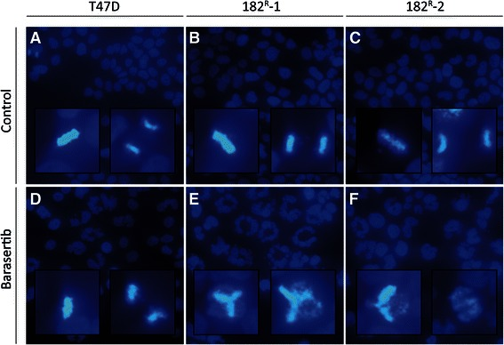 <t>Barasertib</t> prevents chromosome alignment in fulvestrant resistant cell lines. Fluorescence microscopy of Hoechst stained (A and D) parental, (B and E) 182 R -1 and (C and F) 182 R -2 T47D cells treated for 42 hours with DMSO (control; A - C ) or barasertib (50 nM; D - F ). Inserts show higher-magnification images of dividing cells.The experiment was repeated twice and representative images are shown.