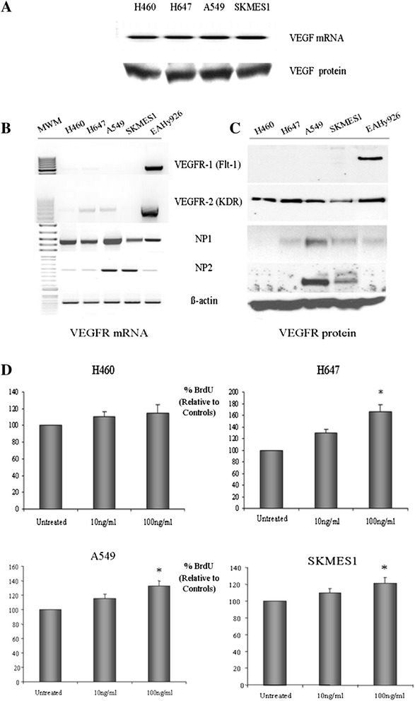 VEGF - mediated survival of NSCLC cells. Lung tumor cells were examined for their expression of VEGF mRNA and protein (A) . The VEGF receptors, VEGFR-1, VEGFR-2, NP1 and NP2 were also assessed at the mRNA (B) and protein (C) levels by RT-PCR and Western blot analysis, respectively. All four NSCLC cell lines were treated with recombinant human VEGF (100 ng/ml) for 48 h. Cell proliferation was then measured using the BrdU cell proliferation ELISA assay (*p