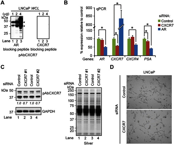 CXCR7 expression in prostate-cancer cells. (A) Western blot of 1, 2, and 4 μg of LNCaP total lysate with pAbCXCR7 antibody in the presence of the non-competitive AR peptide (a.a. 299–315, left panel) or the CXCR7 blocking peptide (a.a. 348–362, right panel) as detailed in Materials and Methods section. The CXCR7 bands are indicated by arrowheads. (B) AR , CXCR7 , CXCR4 , and PSA gene expressions in LNCaP cells transfected with AR, CXCR7, or scrambled control siRNA. RNA was isolated 72 hrs post-transfection and measured by qPCR. Student's t -test was used to calculate significant differences (* p ≤ 0.05, n = 3) between control and experimental cells. (C) Western blot (left panel) of whole cell lysates from LNCaP cells transfected with control or two experimentally-validated CXCR7 siRNAs (CXCR7 #1 or #2) for 72 hrs using antibodies to pAbCXCR7 and GAPDH. Silver-stained gel demonstrated equal protein loading across samples (right panel). The densitometry values were labeled below the blot and normalized to the control transfected cells loaded with the same amount of total proteins. (D) Light microscopy of LNCaP cells transfected with control or CXCR7 siRNA for 72 hrs.