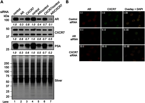 CXCR7 functionally interacts and colocalizes with AR. (A) Western blot of LNCaP cells transfected with the indicated siRNA combinations: control (50 nM), AR (50 nM), CXCR7 (50 nM), AR/control (25 nM/25 nM), CXCR7/control (25 nM/25 nM), or AR/CXCR7 (25 nM/25 nM) for 72 hrs. Western blot was performed using AR, CXCR7, and PSA antibodies. Silver staining demonstrates equivalent loading across the samples. The densitometry values were normalized to control siRNA transfected cells and labeled below the blots. (B) Immunofluorescence analysis of CXCR7 and AR in LNCaP cells under AR or CXCR7 knockdown conditions. Cells were transfected with control (I-I to I-III), AR (II-I to II-III), or CXCR7 (III-I to III-III) siRNA, stained with antibodies against AR and CXCR7, and treated with DAPI.