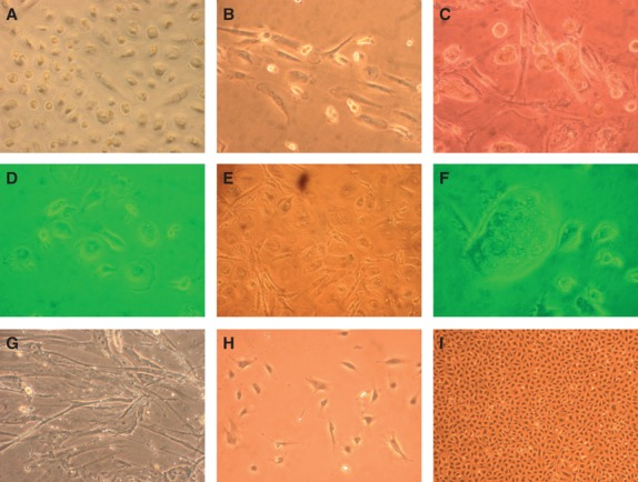 Growth pattern of cultured cells grown in DMEM 20% FBS (A–C); shapes of cultured cells, dividing cells, multinucleated cells (D–F), spindle-shaped cells reminiscent of mesenchymal cells/fibroblasts (G); cells grown in M199 20% FBS (EC medium) grew in small clusters (H) and then became confluent in a cobblestone pattern (I).