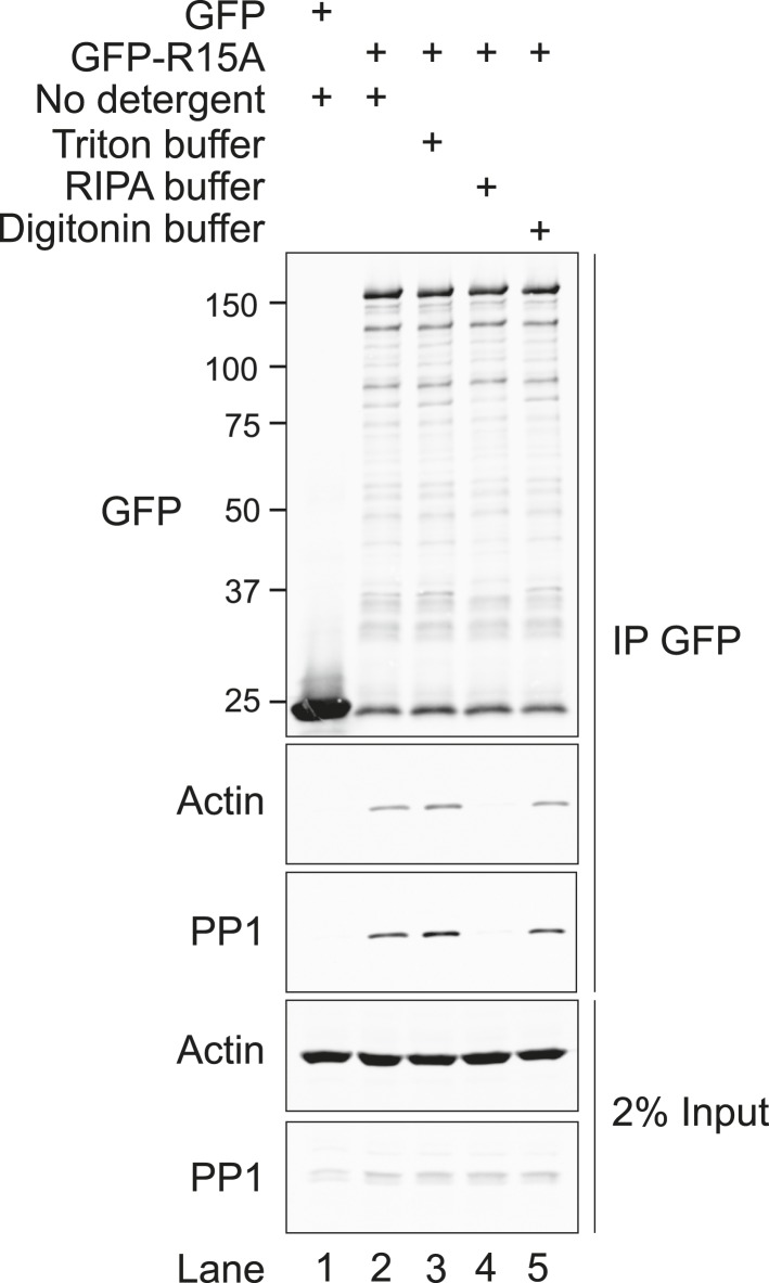 Immunoblot for GFP, actin, and PP1 of GFP-Trap pull-downs and 2% of input. HEK293T cells were transiently transfected with plasmids encoding the indicated constructs. After 36 hr, cells were lysed in GFP-Trap lysis buffer (150 mM NaCl, 10 mM Tris/Cl pH 7.5, 0.5 mM EDTA, 1 mM PMSF, and Protease Inhibitor Cocktail [Roche]) and post-nuclear supernatants were incubated with GFP-Trap beads at 4°C for 2 hr then washed once in the same buffer. Next, samples were washed thrice with no detergent (GFP-Trap lysis buffer), triton buffer (150 mM NaCl, 10 nM HEPES pH 7.4, 0.5% vol/vol triton X-100), RIPA buffer (150 mM NaCl, 50 mM Tris HCl pH 7.4, 1% vol/vol NP40, 0.5% vol/vol sodium deoxycholate, 0.1% vol/vol SDS) or digitonin buffer (150 mM NaCl, 50 mM Tris HCl pH 7.4, 0.1% vol/vol digitonin). DOI: http://dx.doi.org/10.7554/eLife.04872.009