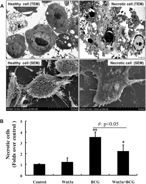 Morphological analysis of the impact of Wnt3a on BCG-infected RAW264.7 cells necrosis. RAW264.7 cells were exposed to Wnt3a-CM or control-CM, followed by infection of BCG at MOI of 10 for 24 h prior to be employed for EM analysis. (A) Representative images of TEM (top panel) and SEM (bottom panel) of healthy RAM264.7 cells (left panel) and necrotic cells (right panel). (B) Quantitative analysis of cells with a necrotic phenotype as determined by morphology using EM images. Control-CM treated cells compared to its corresponding Wnt3a-CM treated cells, #: p