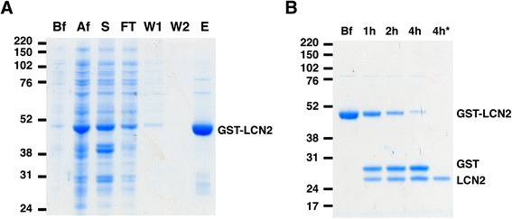 Purification of LCN2. (A) Recombinant GST-LCN2 was purified from E. coli BL21 by affinity chromatography using glutathione-sepharose 4B. Lysates from different purification steps were separated by SDS-PAGE: before (Bf) and after (Af) IPTG induction, supernatant after centrifugation (S), flow-through from column after loading supernatant (FT), 1st column wash (W1), 2nd column wash (W2), and elution of GST-LCN2 (E). (B) GST-LCN2 was digested by thrombin to remove the GST tag. GST-LCN2 was incubated with Thrombin-agarose (Sigma) at RT for up to 4 h. After 4 h incubation, the cleaved GST was absorbed by glutathione-sepharose. The supernatant containing only LCN2 (4 h*) was collected.