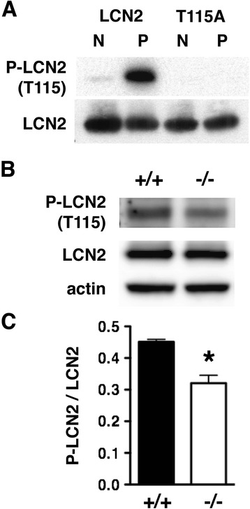 PKCδ phosphorylation of LCN2 at T115 is reduced in neutrophils from Prkcd −/− mice. (A) An affinity-purified rabbit anti-phospho-LCN2 (T115) antibody detected PKCδ phosphorylation of recombinant LCN2 (P), but not unphosphorylated LCN2 (N). The antibody was not immunoreactive against the LCN2 T115A mutant before or after incubation with PKCδ. ( B) Representative western blot showing less immunoreactivity with the phospho-LCN2 (T115) antibody in neutrophil lysates from Prkcd −/− mice than in lysates from WT littermates. (C) The ratio of P-LCN2 (T115) to LCN2 immunoreactivity was significantly reduced in neutrophils from Prkcd −/− compared with Prkcd +/+ mice ( n = 3) (* p