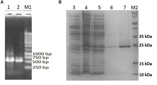 Analysis of aciI gene and protein. (A) Ethidium bromide-stained agarose gel containing aciI (gene amplification by PCR). Lanes 1 and 2 shows the amplified 552 bp amplicon. 5 μl of PCR products were loaded into each lane and electrophoresis was performed at 100 V. (B) SDS-PAGE analysis of the purified recombinant AciI protein. Lane 3, cell lysates of non-induced E. coli BL21 harboring pET28a-aciI; Lane 4, cell lysates of induced E. coli BL21 harboring pET28a-aciI; lane 5, flow-through fraction of purification step; lane 6, wash fraction of purification step; lane 7, eluted fraction containing recombinant AciI protein; lane M1, 1 kb DNA marker (Fermentas, Thermo Fisher Scientific, USA); lane M2, molecular weight markers (Bio-Rad, USA) with mass of each marker protein in kDa as indicated. The same amount of protein was loaded into each lane and subjected to electrophoresis at 150 V.