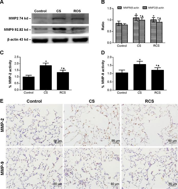 Effects of rosiglitazone on the expression of MMP2 and <t>MMP9</t> in Cs-induced emphysema in rats. Notes: Effects of rosiglitazone on the expression of MMP2 and MMP9 in CS-induced emphysema in rats as measured by Western blotting ( A ). The target protein bands were desitometrically analyzed normalized to β-actin ( B ). The activities of MMP2 ( C ) and MMP9 ( D ) in each group were determined by using MMP2 and MMP9 <t>Biotrak™</t> activity assay. The expression of MMP2 and MMP9 was confirmed by using immunohistochemistry for each group (magnification ×400) ( E ). The values presented are the mean ± SD. * P