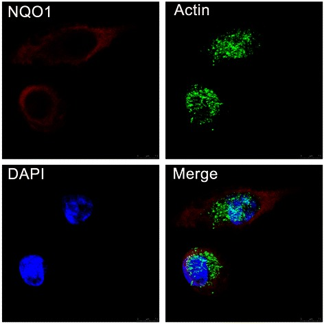 IF staining for NQO1 protein in A549 human lung cancer cells. NQO1 protein located in the cytoplasm of A549 cells (Red for NQO1, Green for Actin, and Blue for DAPI).