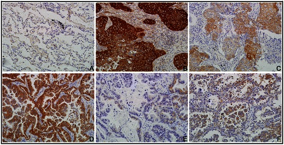 IHC staining for NQO1 protein expression in lung tissues. (A) NQO1 protein was negative in normal lung tissues. (B) NQO1 protein was showed diffuse and strong positive staining in cytopalsm of lung SCC cells with LN metastasis. (C) NQO1 was weakly positive in lung SCC without LN metastasis. (D) Diffuse and strong positive NQO1 protein signal in lung adenocarcinoma. (E F) NQO1 protein staining is negative or weakly positive in lung adenocarcinoma. (Original magnification, 200× in A-F ).