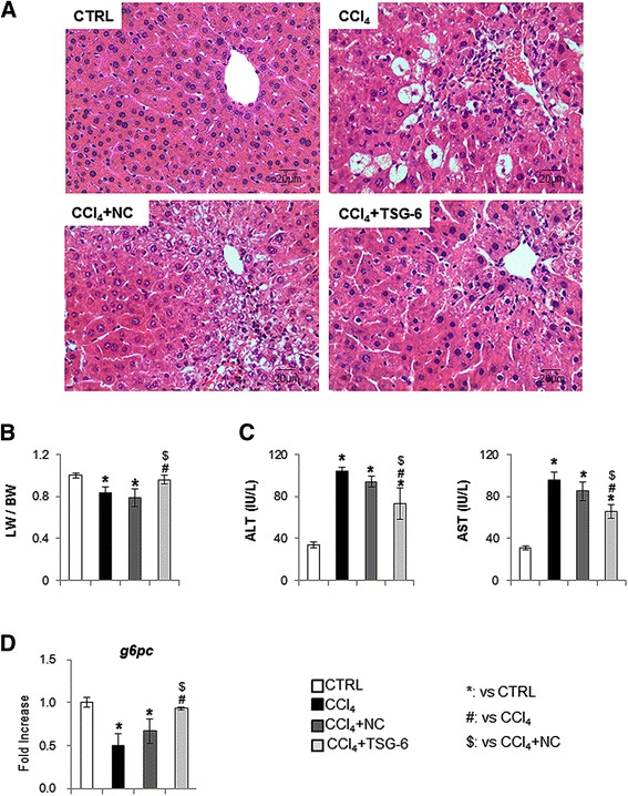 Effects of TSG-6 on liver histomorphology and function in CCl 4 -treated mice. (A) H E staining shows the extensive cellular damage and infiltration of inflammatory cells in CCl 4 -treated mice with or without NC (negative control: mock transfected cell)-conditioned medium (CM). Those cellular injuries were reduced in CCl 4 mice treated with TSG-6-CM (CCl 4 + TSG-6). The representative images are shown at × 40 (CTRL: corn-oil-treated control mice/ CCl 4 :CCl 4 -treated mice/ CCl 4 + NC: CCl 4 -treated mice with NC-CM). (B) Relative liver weight / body weight of mice. (C) The values of AST and ALT are graphed. (D) QRT-PCR analysis for G6pc of liver mRNA from normal (CTRL), CCl 4 , CCl 4 with NC-CM (NC) or TSG-6-CM (TSG-6) (n ≥4 mice / group) (ANOVA, * P