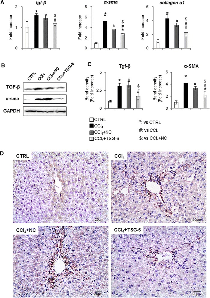 Reduced fibrosis in the TSG-6 treated liver. (A) QRT-PCR analysis of liver mRNA for tgf-β, α–sma and collagen-α1 (n ≥4 mice/group). Mean ± SD results are graphed. (B) and (C) . Western blot analysis of TGF-β (25 kDa: processed form) (inducer of fibrosis) and α-SMA (fibrogenic marker) (GAPDH was used as an internal control) (n ≥4 mice/group). Data shown represent one of three experiments with similar results (B: Immunoblot/ C: Band density of TGF-β and α-SMA). Data represent the mean ± SD of three independent experiments. (D) IHC for α-SMA in liver sections from representative control, CCl 4 , CCl 4 + NC, and CCl 4 + TSG-6 mice (×40) (ANOVA, * P