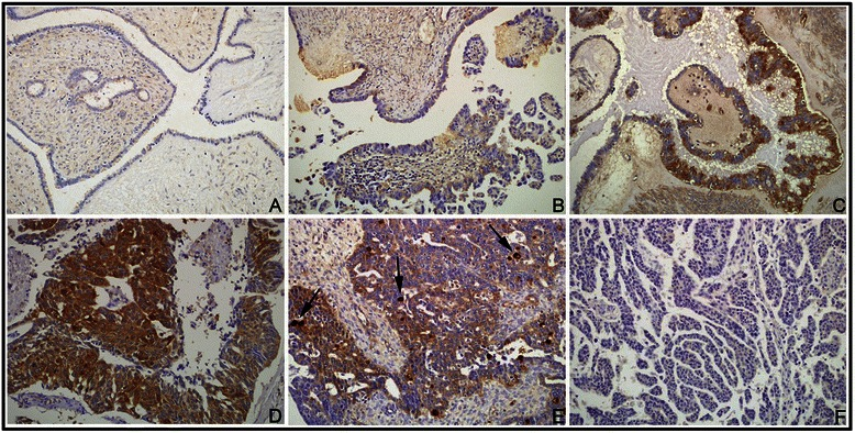 IHC staining of NQO1 protein in ovarian tumor samples. (A) Negative expression of NQO1 protein in a benign serous tumor. (B–C) Weak positive expression of NQO1 protein (B) and positive expression (C) in atypical cells of borderline serous tumors. (D) Strong positive expression of NQO1 protein in serous carcinoma cells, in a patient with metastasis. (E) Positive expression of NQO1 protein in a serous carcinoma patient without metastasis. Scattered, strongly positive-staining cancer cells are seen ( arrows ). (F) Negative expression of NQO1 protein in a serous carcinoma patient without metastasis. Original magnification, A–F: ×200.